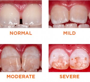 what_is_fluorosis