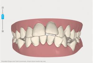 clincheck invisalign high oaks dental