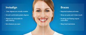 compare the braces
