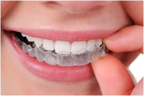 Dental Braces in St Albans