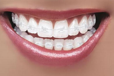 Clear Braces in St Albans