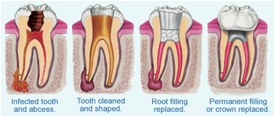 High Oaks Dental Practice Root Canal Treatments St Albans